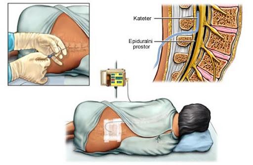 Epidural anesteziya, ağrısız doğum